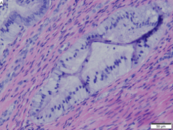 Cervical adenocarcinoma in situ