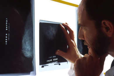 Physician trying to decide if a person has a tumor or a wound.