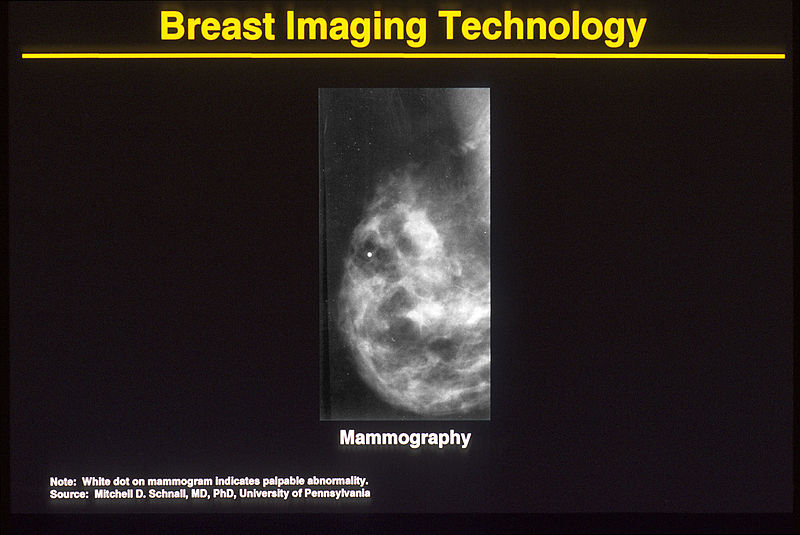 Breast imaging mammogram mammography early detection2